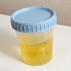 Urintherapie bei Warzen Bild